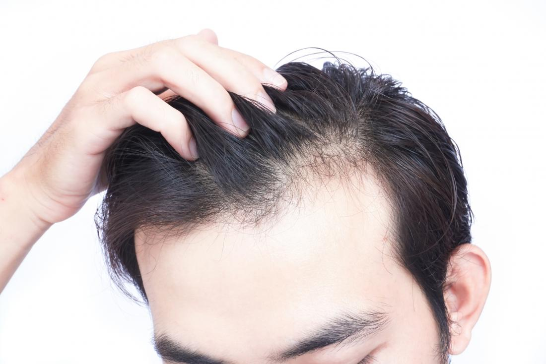 vitamin-d-deficiency-can-lead-to-hair-loss