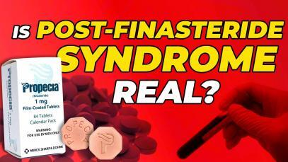 Is-Post-Finasteride-Syndrome-Real-Diagnosing-And-Reversing-It-YT-Thunbnail.jpg