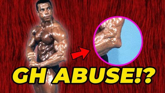 Chris-Dickerson-Massive-Elbows-From-GH-Abuse-YT-Thumbnail.jpg