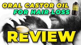 Oral-Castor-Oil-For-Hair-Loss-Review-My-Experience-And-Others-YT-Thumbnail.jpg