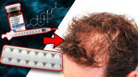 Will-Taking-Deca-With-Finasteride-Cause-Hair-Loss-YT-Thumbnail.jpg