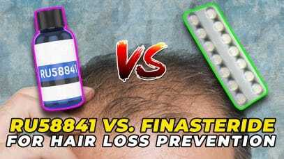 RU58841-Vs.-Finasteride-For-Hair-Loss-Prevention-YT-Thumbnail.jpg