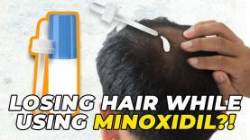 Still-Losing-Hair-While-Using-Minoxidil-YT-Thumbnail.jpg