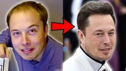How-Elon-Musk-Reversed-His-Hair-Loss-YT-Thumbnail.jpg