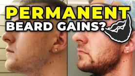 PROOF-That-Minoxidil-Beard-Gains-Are-PERMANENT-YT-Thumbnail.jpg