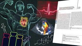 Echocardiogram-Results-Of-17-Bodybuilders-YT-Thumbnail.jpg