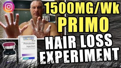 1500MG-Per-Week-Primobolan-Hair-Loss-Experiment-YT-Thumbnail.jpg