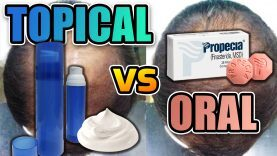 Topical-Finasteride-Vs.-Oral-Finasteride-YT-Thumbnail.jpg